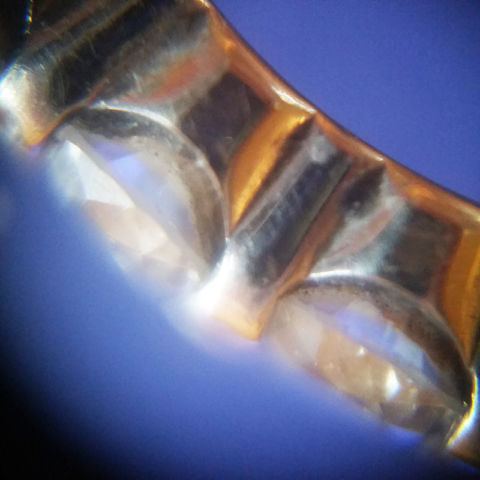 ring microscopy